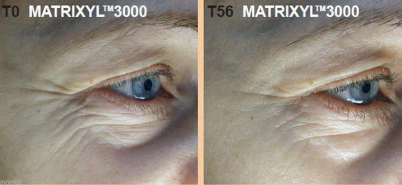 /Pure Matrixyl 3000 peptide additive for mixing cream or serum