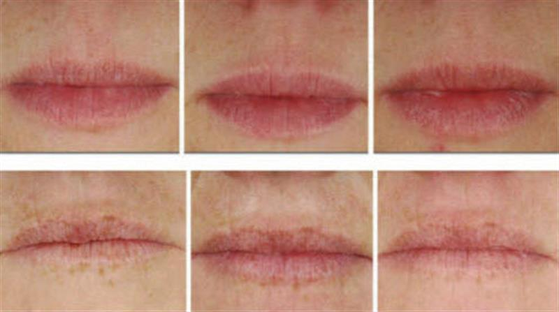 Upper lip wrinkle cream with Decorinyl, Tri-Peptide-1, Matrixyl 3000 And Hyaluronic Acid