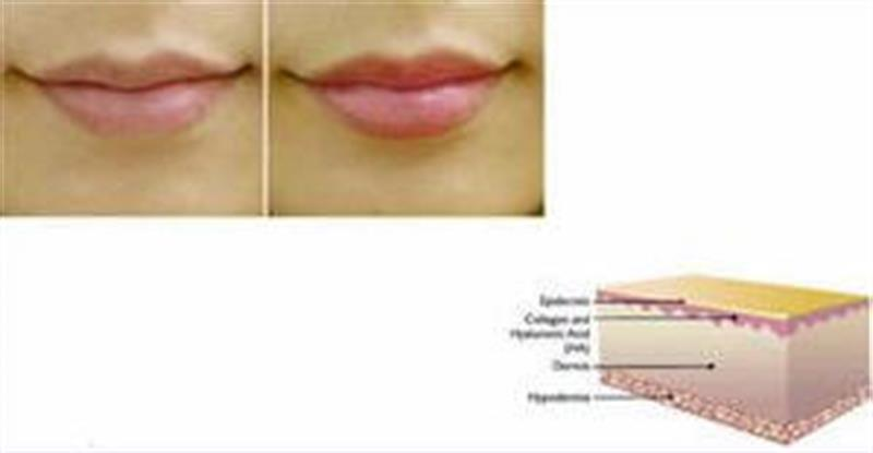 Lip Countour peptide additive for mixing cream or serum